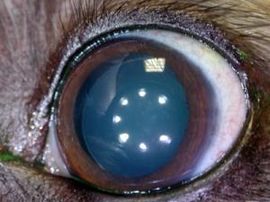 Protesi intrasclerale in caso di glaucoma primario cronico